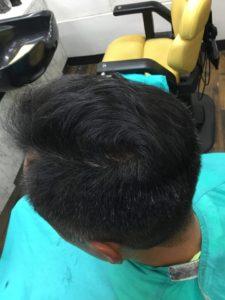 髪の毛を増やした男性の頭頂部
