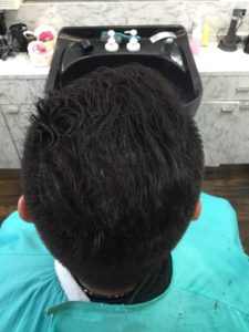 頭頂部の毛が増えた男性