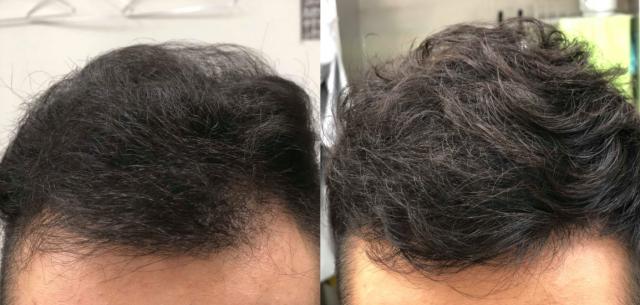 男性の髪が増えたビフォーアフターの画像