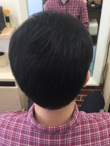 頭頂部の毛を増やした男性