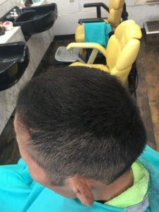 髪の毛が増えた男性