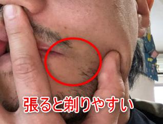 ヒゲを剃りやすいように指で皮膚を引っ張っている画像