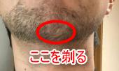 ヒゲが剃りにくいあごの画像
