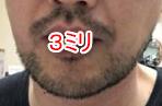 男性のヒゲの画像
